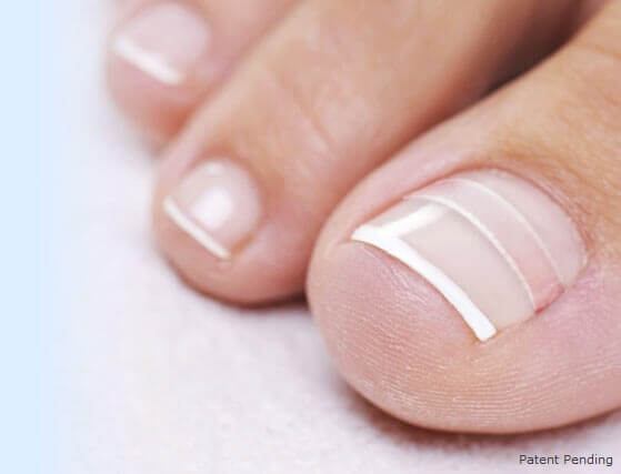 ingrown toenail home treatment from CurveCorrect