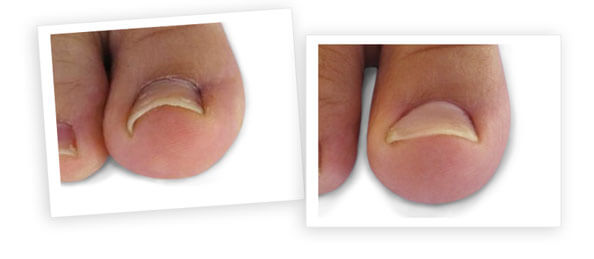 How does our ingrown toenail home treatment work