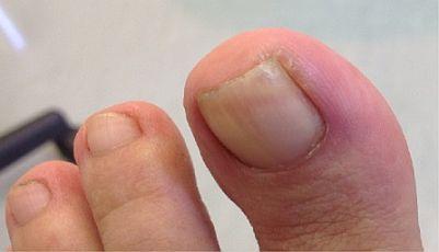 ingrown-toenail-surgery-stage1.jpg