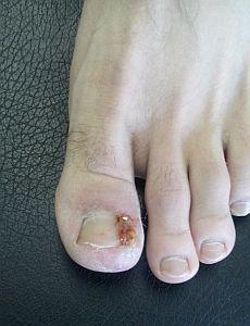 ingrown-toenail-surgery-stage3.jpg